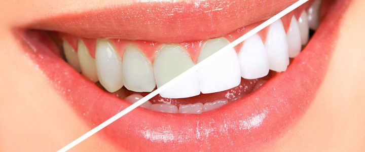 Dekt jouw zorgverzekering wel elk bezoek aan de tandarts?